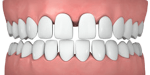 common-cases-gapped-teeth